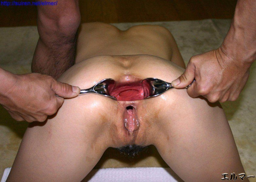 Brutal Anal Fisting Extreme Insertions